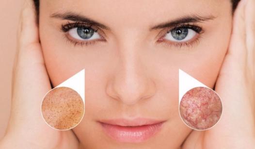 tratamiento luz pulsada facial precio