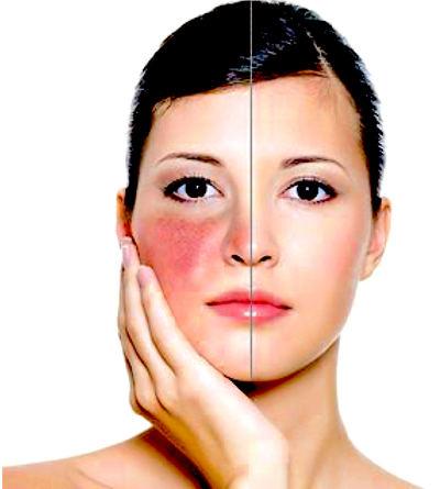 El último avance para las pieles más sensibles y reactivas