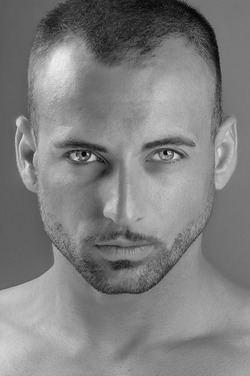 España, segundo líder mundial en índices de alopecia